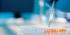 The growth in the global biosimilars market