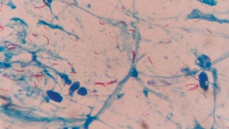 UK-led study marks shift towards genetic era in tackling TB